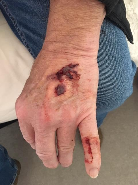 Halesowen News: The bite marks on John Home's hand